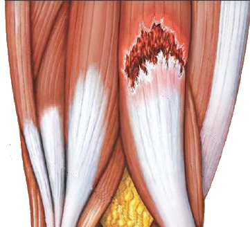Pull muscle in chest