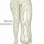 Lymph gland example of Lymphedema