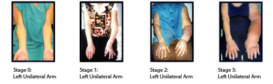 Lymphedema stages